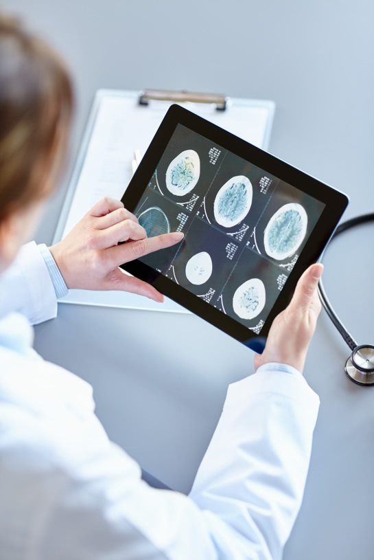 Health systems can deliver timely stroke care to save lives